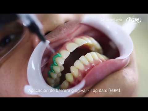 Caso Clinico Com Whiteness Hp Automixx E Whiteness Hp Blue Fgm Youtube
