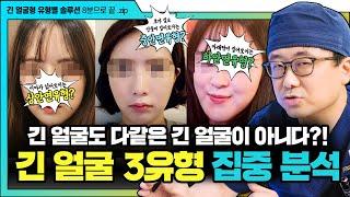 [긴얼굴성형] 긴 얼굴 유형 자가진단법!! 효과적으로 …