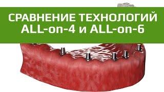 Имплантация с немедленной нагрузкой протезом. Отличие технологии All-on-4 от All-on-6