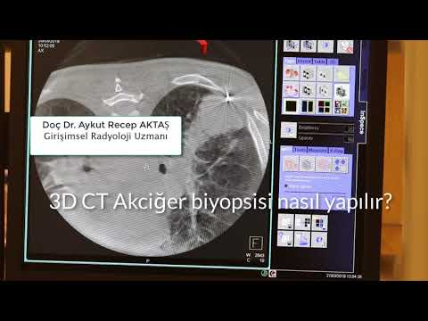 Üç boyutlu tomografi ile Akciğer biyopsisi