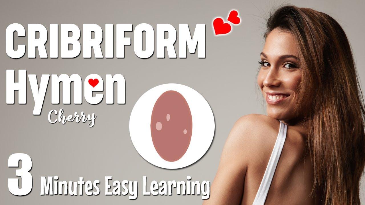 Cribriform hymen causes, symptoms, diagnosis, treatment | Types of hymen  | Rare hymen type