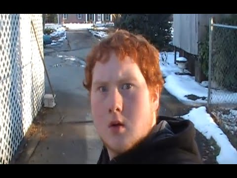 Gingervitis Lets get rid of this disease ones and for all - YouTube - Gingervitis