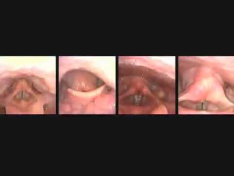 Vocal Cords up close while singing