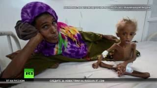 Ужас войны: фотография истощенного йеменского ребенка шокировала правозащитников