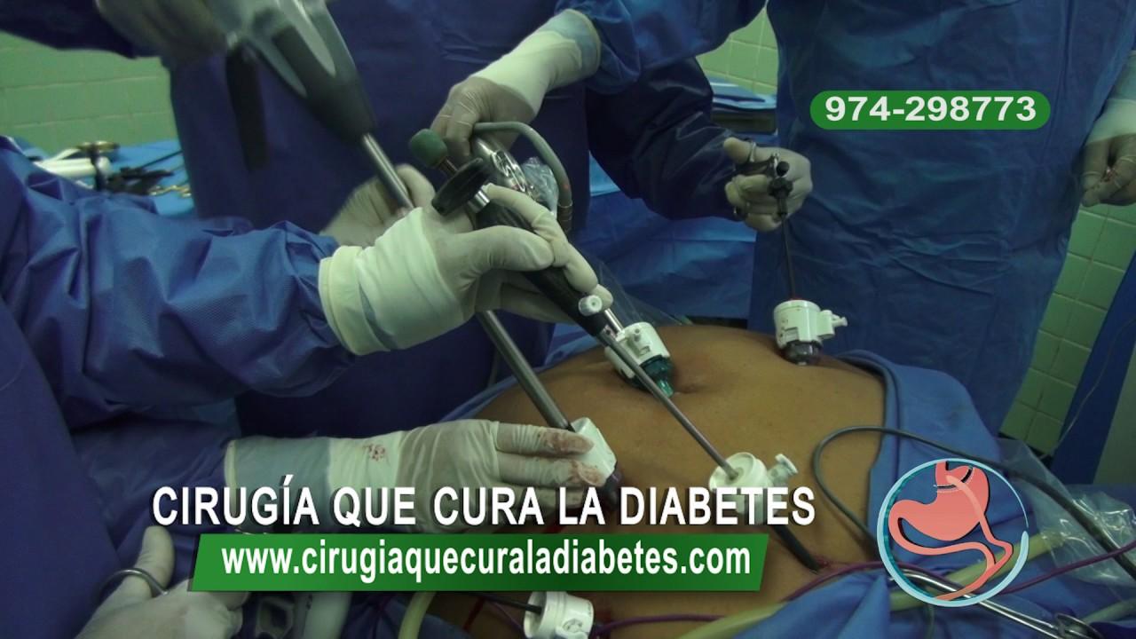 Cirugía que cura la Diabetes - Dr. Raúl Layme - YouTube