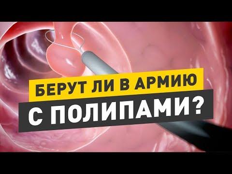 Определение срока беременности, на каком сроке УЗИ покажет