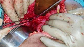 Download Hepatico-Jejunostomy - RPSD Injury