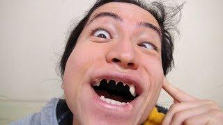 【整形】抜けた前歯について語ります...  Why I Removed My Front Teeth...