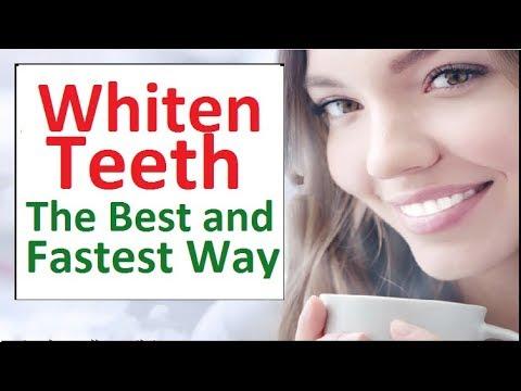 Whiten Teeth Best Way – Whitening Teeth Dentist Best Choice: What The Best Way To Whiten Teeth?
