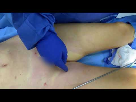 Liposuction and BodyTite of Abdomen and Inner Thighs with Dr. Kenneth Benjamin Hughes in Los Angeles