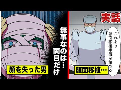 【実話】他人の顔を奪う…顔面移植の大手術で人生を変えた男。