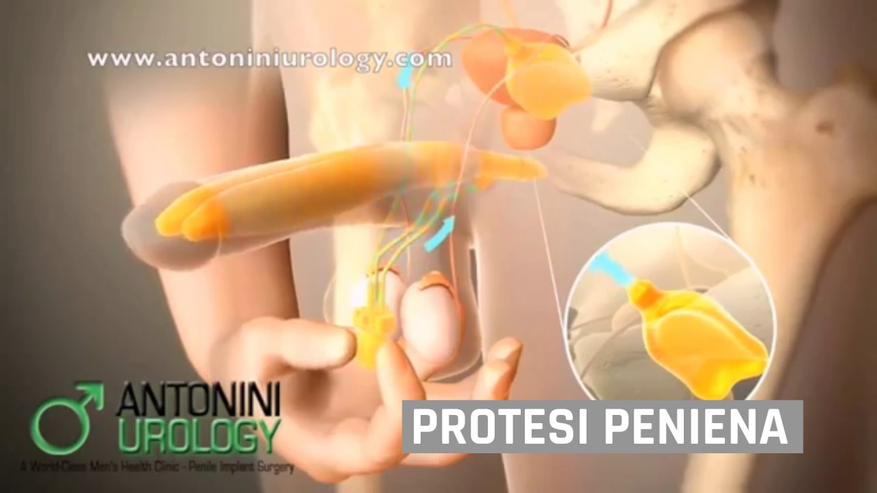 video di massaggio alla prostata maschile disfunzione erettile