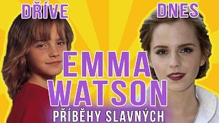 Emma Watson: Od malé čarodějky k femme fatale