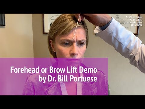 Forehead Lift - Browlift Surgery - 👨🏻‍⚕️ Seattle Facial Plastic Surgeon | ☎️ (206) 624-6200