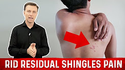 hqdefault - Shingles Back Pain Left Side