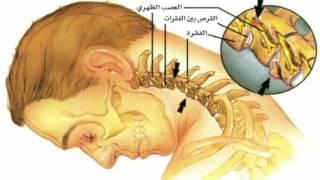 أهمية العلاج الطبيعي في التخفيف من آلام الظهر والرقبة
