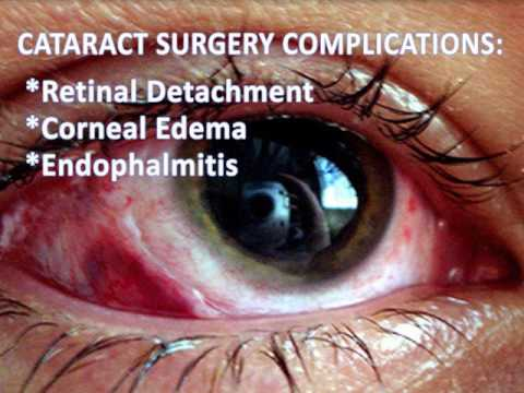 Cataract Surgery Risks Youtube