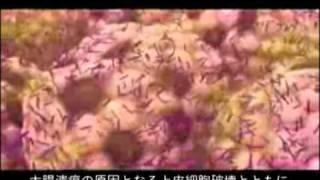 クロストリジウム・ディフィシル感染症(CDI)