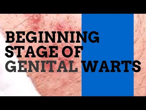 Beginning Stage of Genital Warts