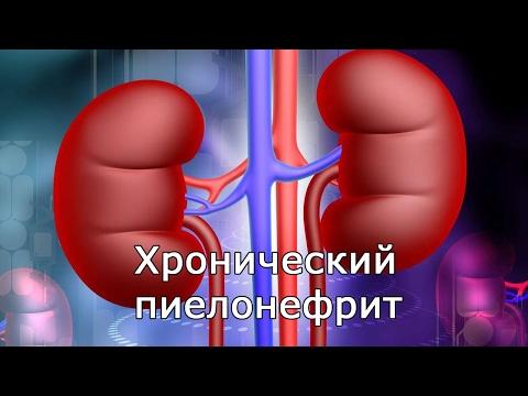 Хронический пиелонефрит, симптомы, лечение, обострение