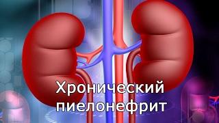 видео Пиелонефрит (воспаление почек)