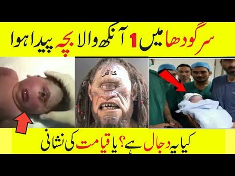 One Eyed Baby Born In Pakiatan | Aik Ankh Wala Bacha Paistan Mai Paida Hua