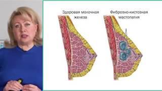 Признаки рака груди. Как не пропустить рак молочной железы? Симптомы рака молочных желез.