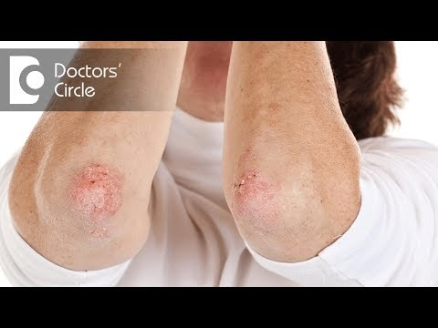 how-is-psoriasis-diagnosed?---dr.-suresh-g