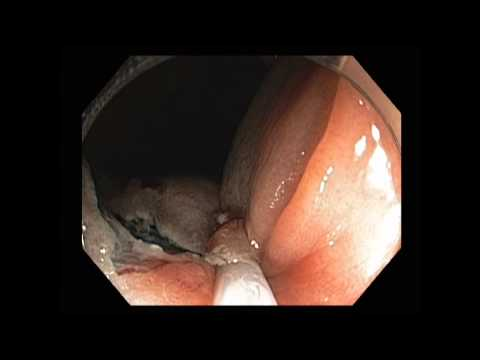 colonoscopy: hepatic flexure flat-sessile lesion emr - youtube, Cephalic Vein