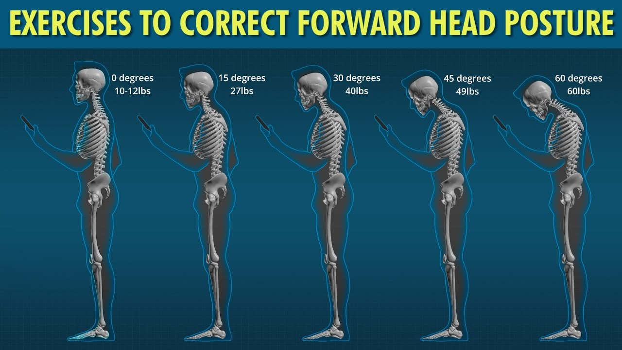 Forward Head Exercises To Correct Posture Youtube