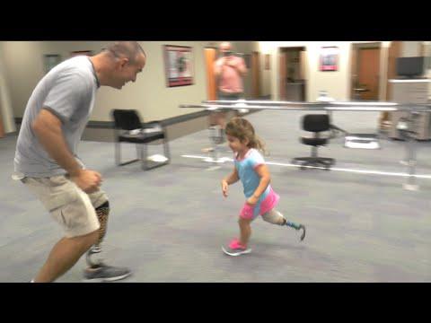 Luna's 1st Prosthetic Running Leg!
