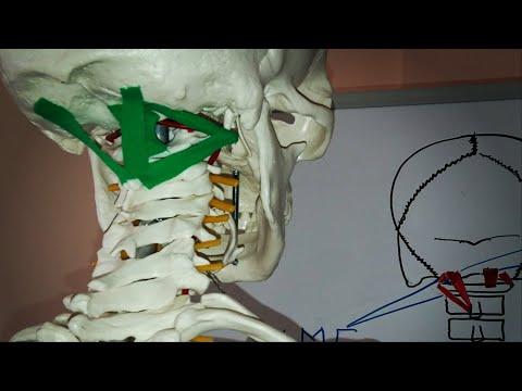 Болит шея затылок и тошнит
