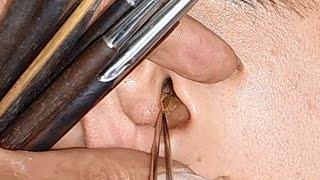 EAR WAX * 耳掃除 | 耳ワックス除去ガイド  #MensHairCutsHaTinh 57