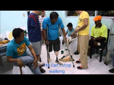 Montero Medical Missions: Prosthetics in Tandag, Philippines