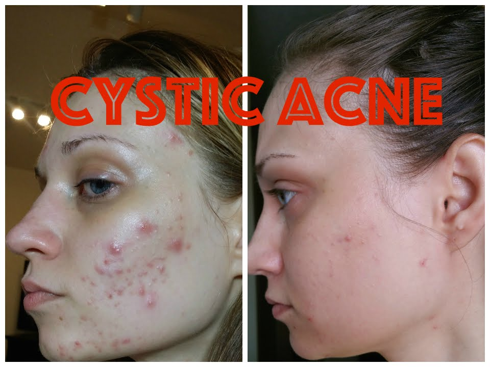 Adult facial cysts acne-9578