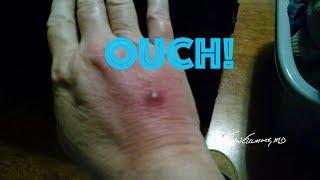 Farrah Hand Eschar, MRSA!?!