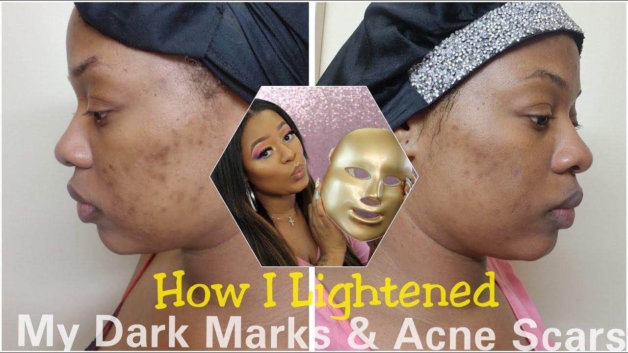 How I Lightened My Dark Marks Acne Scars Led Mask Update