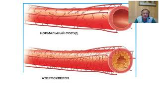 постер к видео Как лечить гипертонию без таблеток - запись вебинара