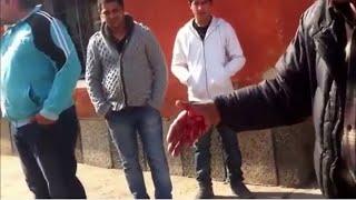 Huge Rottweiler Attack A Man