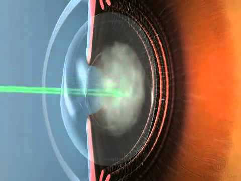 Лазерная дисцизия вторичной катаракты - YouTube