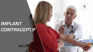 Implant contraceptif : avantages et inconvénients - Gynécologie