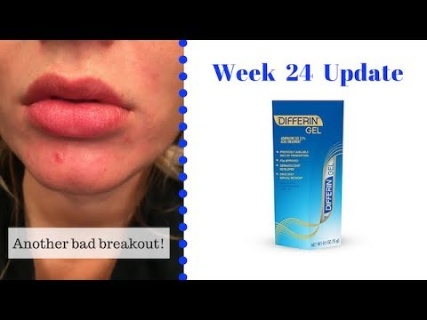 Differin Gel // Week 24 Update (MONTH 6) - YouTube