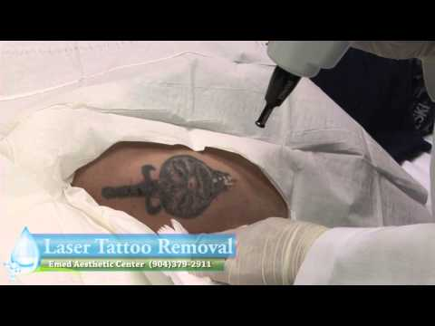 Tattoo Removal Jacksonville, Florida