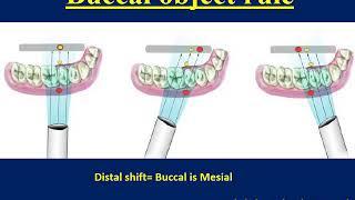 Radiography in Endodontics