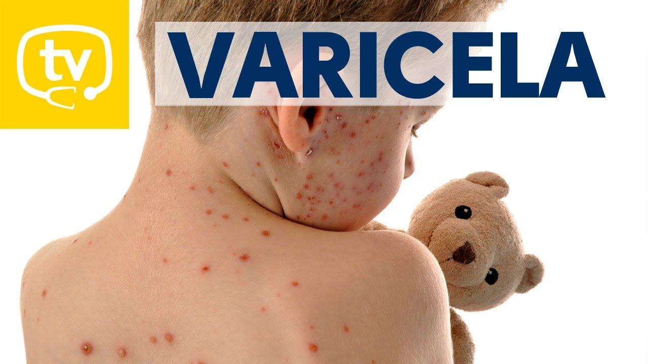 sintomas de varicela en bebes de 1 ano