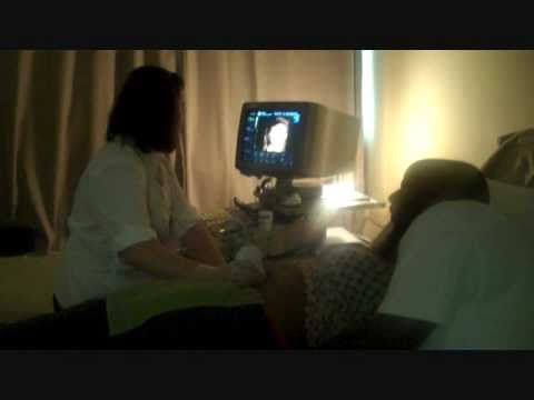 The 3d 4d Ultrasound Experience At Goldenview Ultrasound