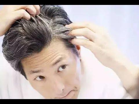 白頭髮越來越多 你一定有這些壞習慣!