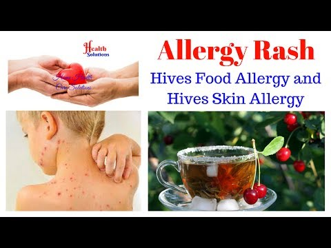 Allergy Rash - Hives Food Allergy and Hives Skin Allergy