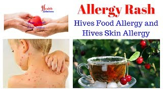 Allergy Rash - Hives Food Allergy and Hives Skin Allergy Get it her...