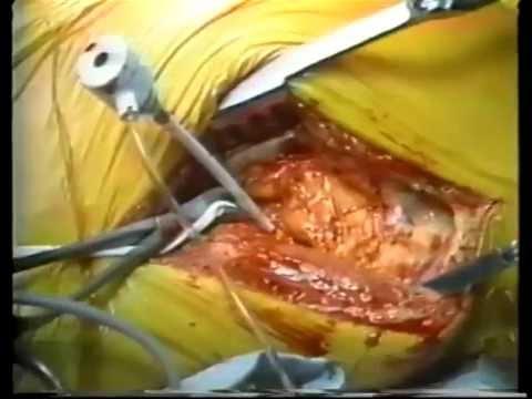 watch rotoblator rotational atherectomy procedure for